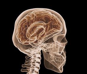 medical scan of brain injury